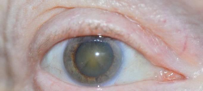 Бельмо на глазу, симптомы и лечение