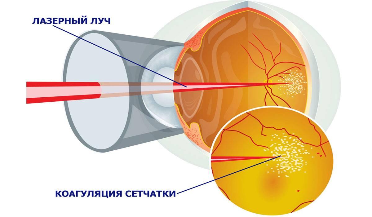 Тест амслера - что это, пройти онлайн, распечатать сетку для проверки глаз
