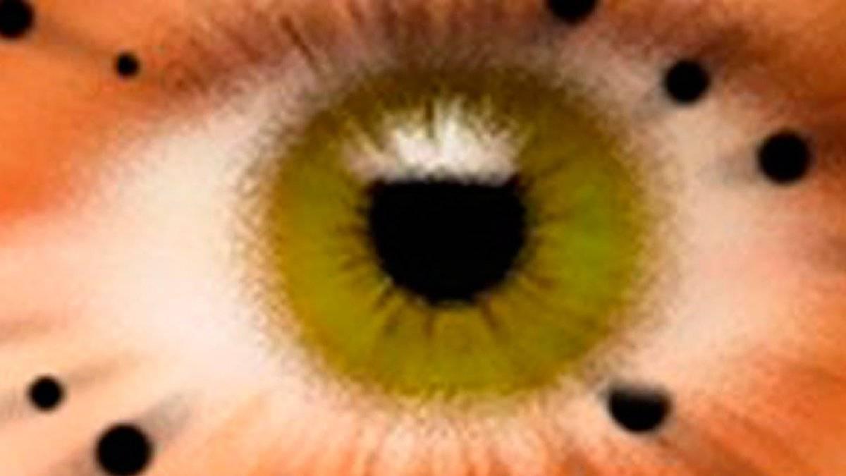 Появились плавающие темные пятна в глазах, когда смотришь - как убрать?