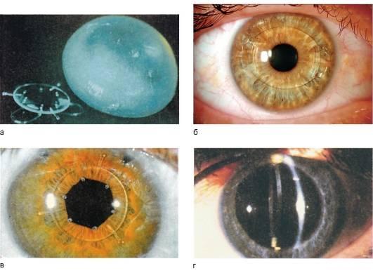 Что значит артифакия глаза: пояснения офтальмолога