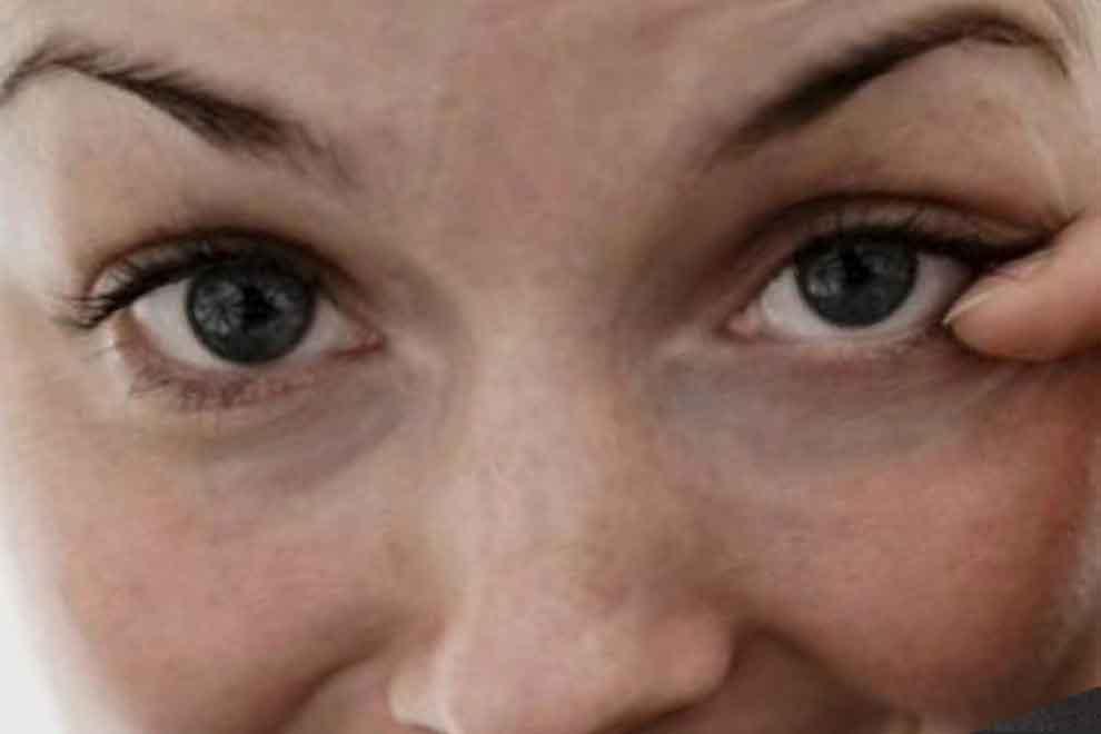 Тик глаза - причины, что делать и как избавиться от такого сосотояния