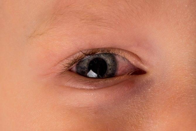Кровоизлияние в глазу у новорожденного – что делать и как лечить