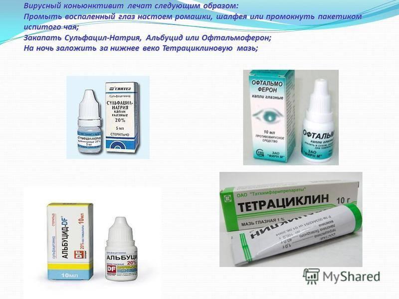 Лечение конъюнктивита у детей: каплями, мазями и народными средствами / mama66.ru