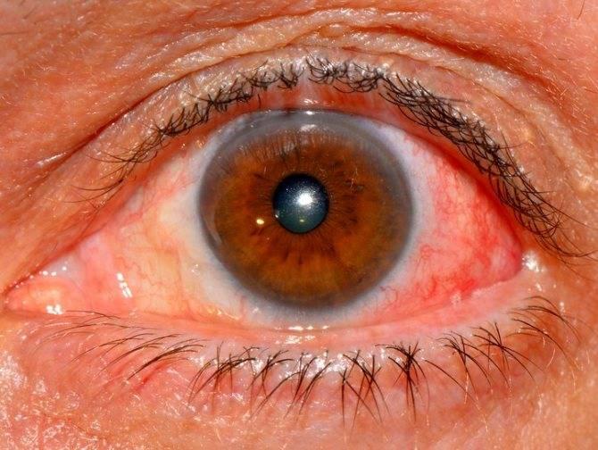 Эписклерит глаза: причины, симптомы и лечение