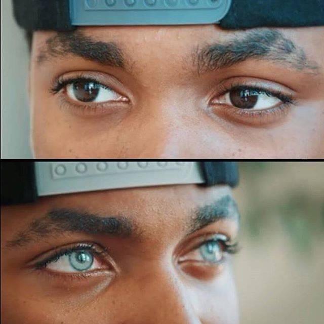 Возможна ли операция по изменению цвета радужки глаза?
