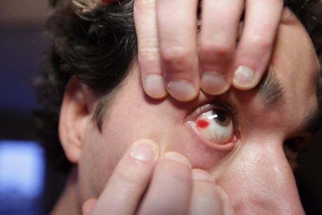 Проявления химического ожога глаз и действенное лечение в домашних условиях