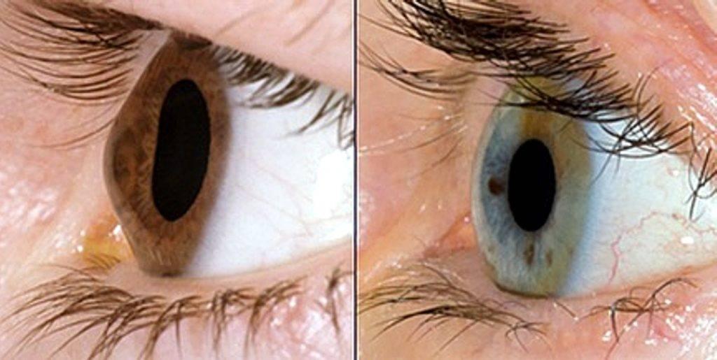 Кератоконус - причины, симптомы, диагностика и методы лечения. контактные линзы при кератоконусе