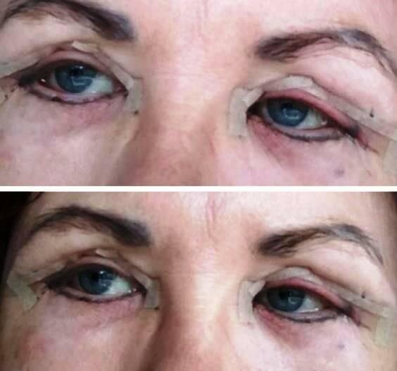 Как ухаживать за глазами после блефаропластики