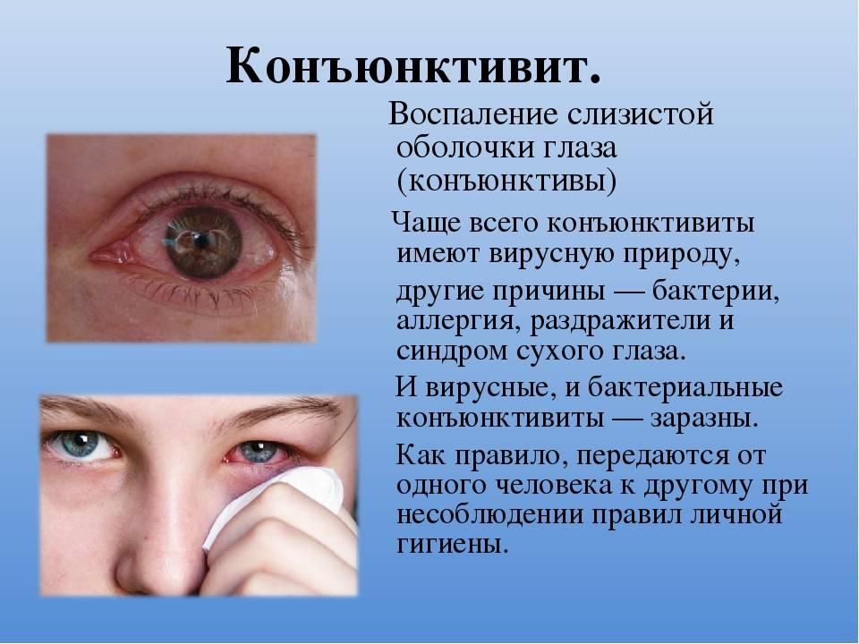 Аденовирусный конъюнктивит: лечение у взрослых, как себя проявляют симптомы на глазах в катаральной, фолликулярной, пленчатой формах