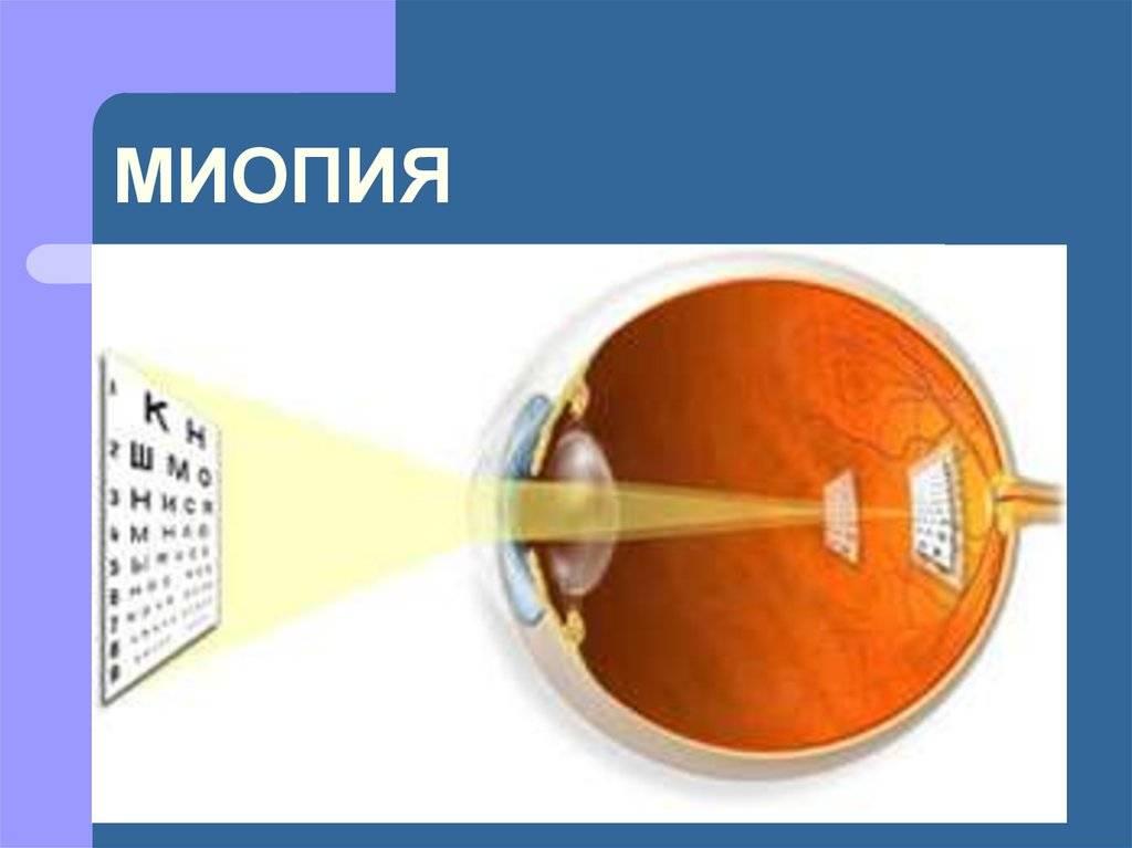 Допуск к занятиям в спортивных секциях детей с нарушениями зрения