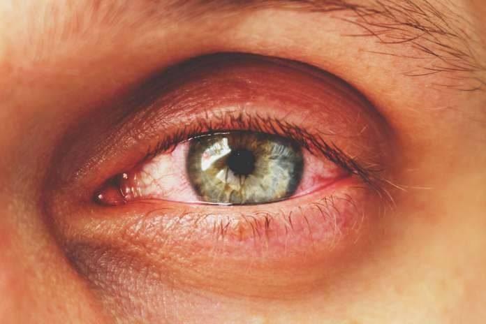 Гноится глаз при простуде: почему так бывает, как диагностировать, чем лечить