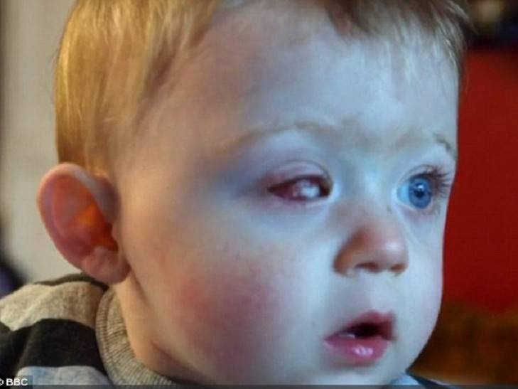 Стала замечать что ребенок одним глазом моргает причины и лечение