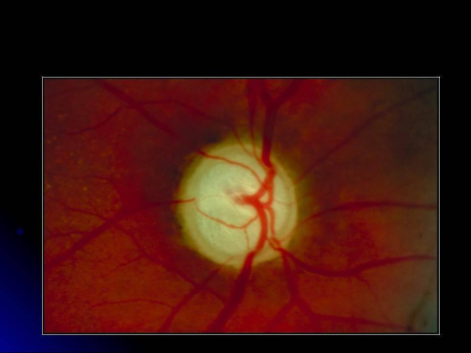 Колобома глаза: что это такое, виды, симптомы и лечение