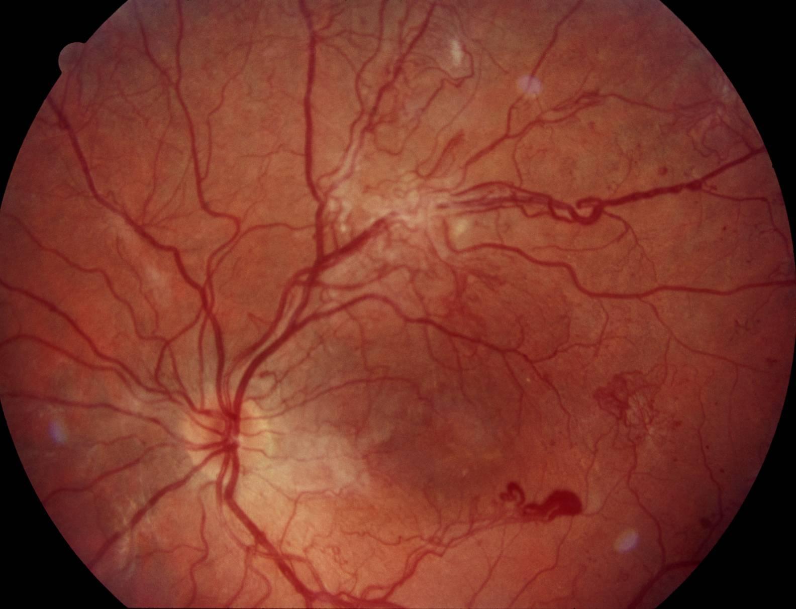 Ангиопатия сетчатки глаза у ребенка: причины, симптомы и лечение. детский офтальмолог - sammedic.ru