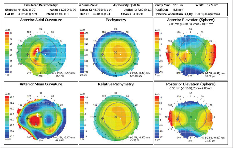 Кератотопография - топография роговицы - диагностика заболеваний роговицы