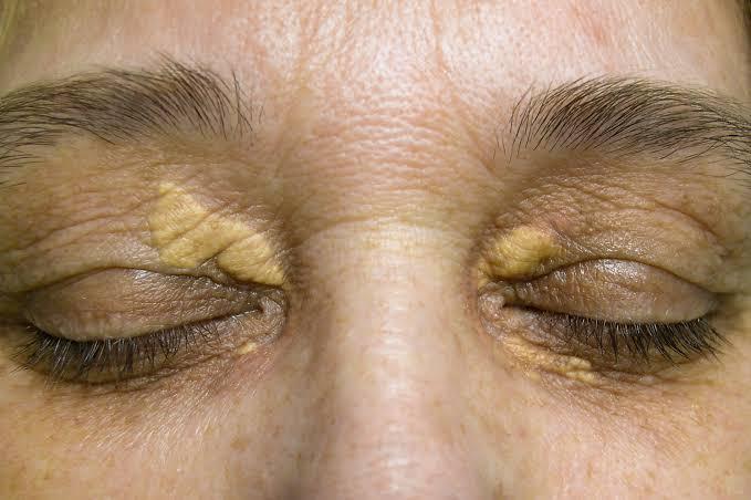 Жировики на веках глаз: как избавиться и к какому врачу обратиться