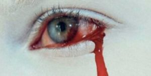 Кровоизлияние в глаз - причины, фото, что делать