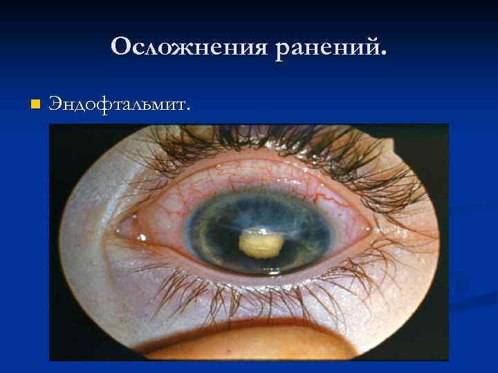 Отслоение сетчатки глаза: последствия после операции, что это такое и чем грозит
