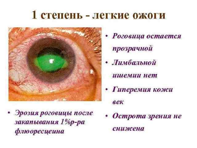 Что делать при ожоге глаз сваркой - помощь в домашних условиях