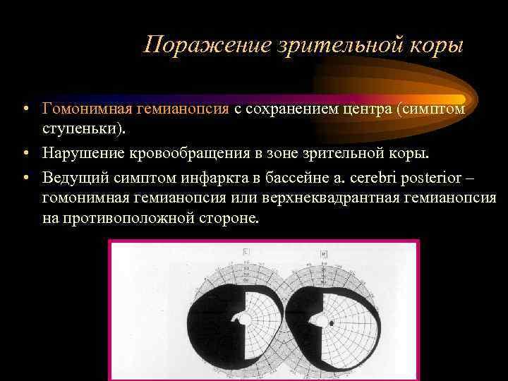 Что такое контралатеральная гомонимная гемианопсия