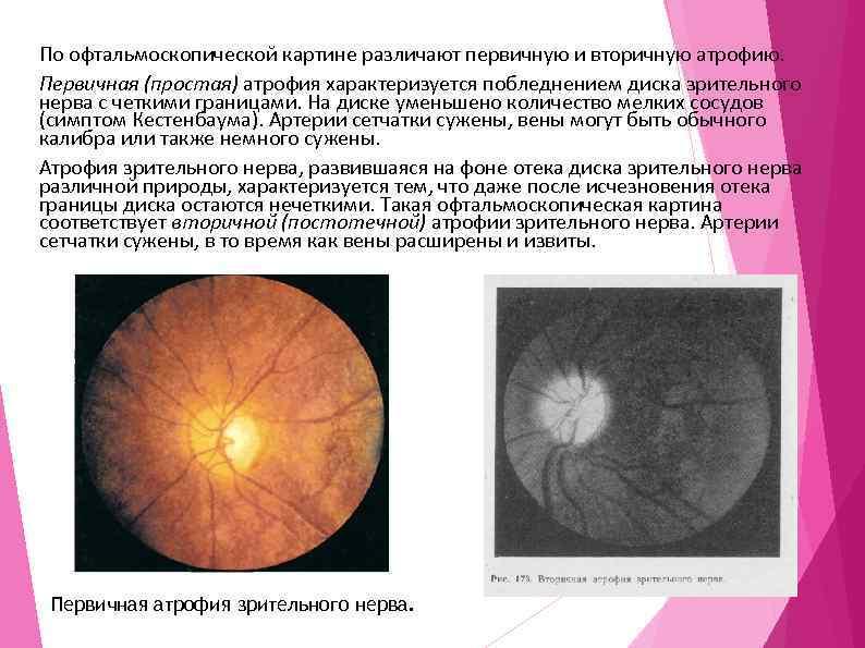 Атрофия зрительного нерва (полная и частичная): что это такое, симптомы, лечение
