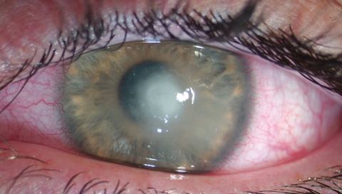 Кератит что это за болезнь. что нужно знать о кератите — офтальмология