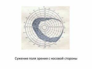 Стереоскопическое зрение (монокулярное): сужение полей зрения - причины, как проявляется, что означает, пространственная ориентация