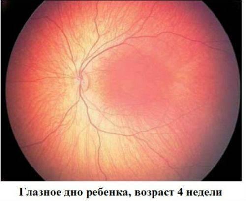 Сужение сосудов глазного дна: причины, симптомы, лечение