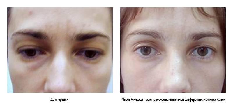 Почему у грудничка синяки и круги под глазами