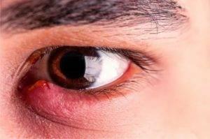 Допускается ли ношение контактных линз, если на глазу вылез ячмень?