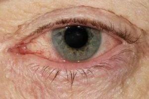 Воспалился глаз и гноится чем лечить | ocularhelp