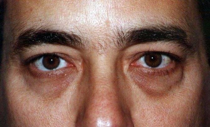 """Темные круги под глазами у мужчин: причины и методы профилактики - """"здоровое око"""""""