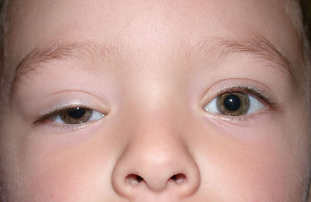 Врожденный птоз века у детей – причины, симптомы и лечение у ребенка