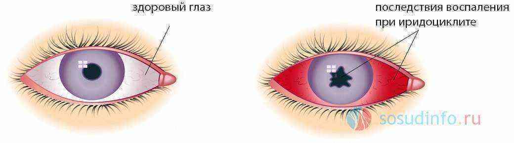 Симпатическая офтальмия                (симпатическое воспаление)