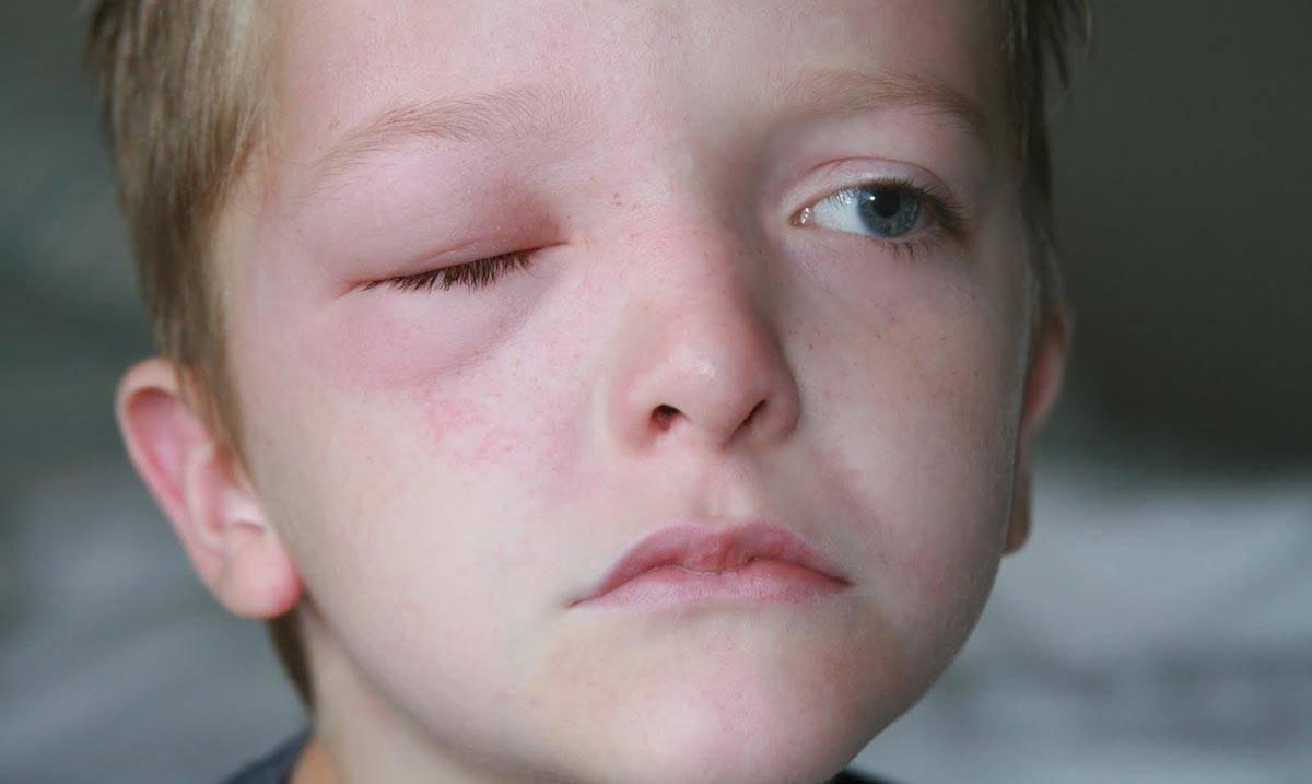 Синяки под глазами красные. красные синяки под глазами у ребенка: причину ищите в аллергии