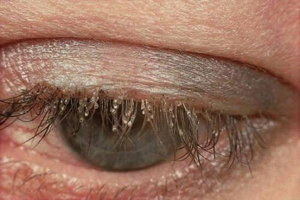 Демодекоз глаз симптомы и лечение: как лечить демодекоз у человека