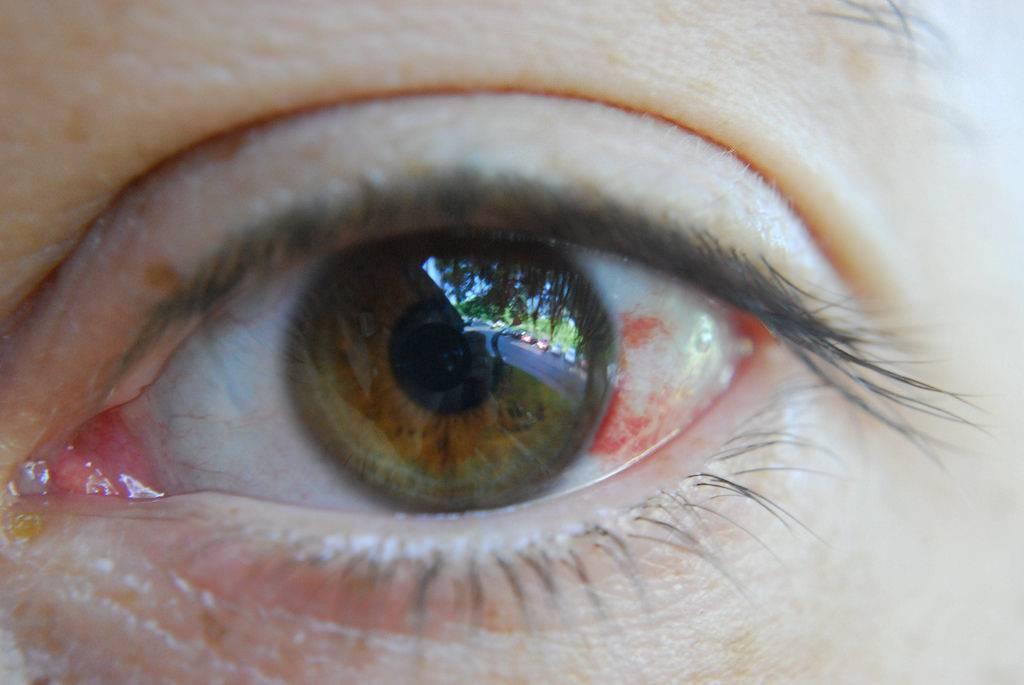 Сенестопатия: симптомы, 5 психических расстройств, способствующих развитию болезни, методы лечения