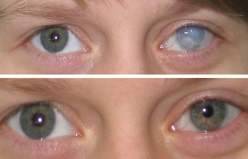 Причина мутных глаза у человека, как избавиться от проблемы