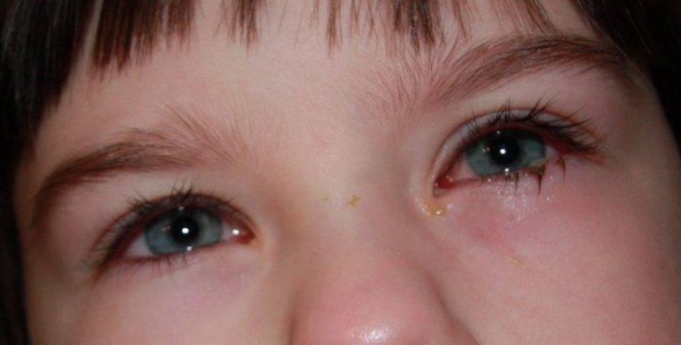Красные глаза при простуде и орви: причины у взрослого, сочетание покраснения, слезливости и насморка