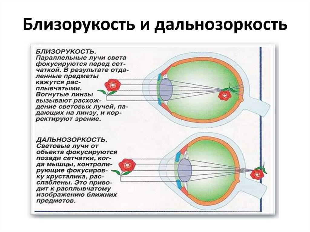 Что такое близорукость и дальнозоркость простыми словами, отличия болезней oculistic.ru что такое близорукость и дальнозоркость простыми словами, отличия болезней