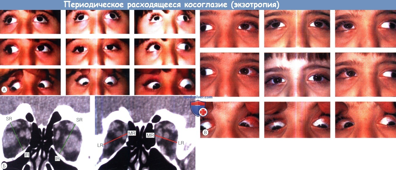 Расходящееся косоглазие у взрослых и детей: симптомы, причины, лечение, упражнения, виды страбизма (при поражении глаз, альтернирующее), диагностика, профилактика