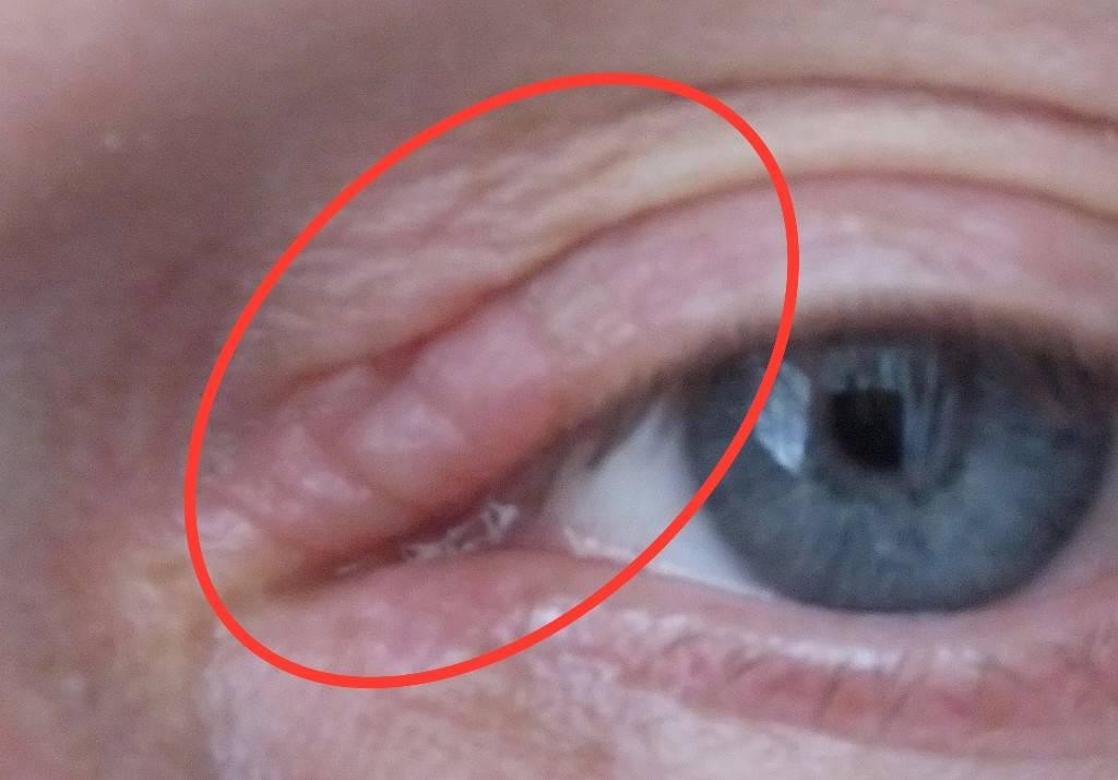 Когда чешутся глаза в уголках - что делать? рекомендации