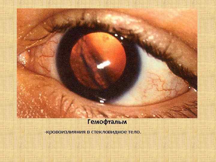 Гемофтальм - причины, симптомы, диагностика, лечение