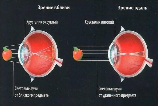 Замена хрусталика при близорукости