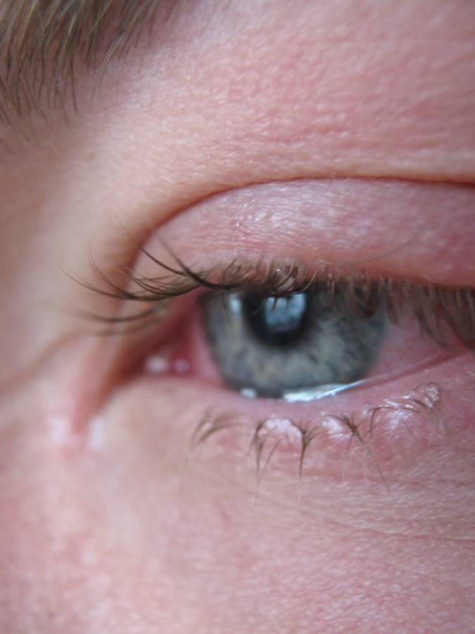 Вирусные заболевания глаз: симптомы, причины, методы лечения, отзывы - sammedic.ru