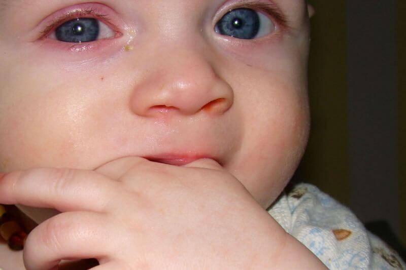 У ребенка насморк и слезятся глаза, сопли и слезы у ребенка