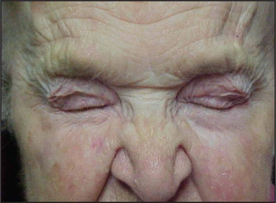 Блефароспазм – характерные симптомы заболевания