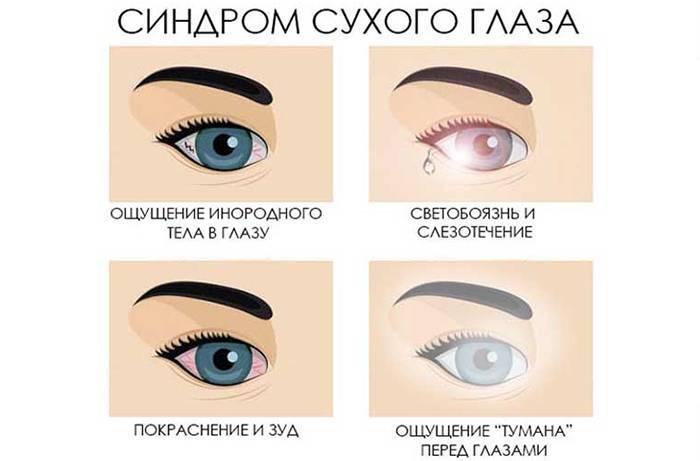Народные средства для лечения сухих глаз