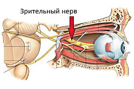 Атрофия зрительного нерва - лечение и прогноз - вижу супер