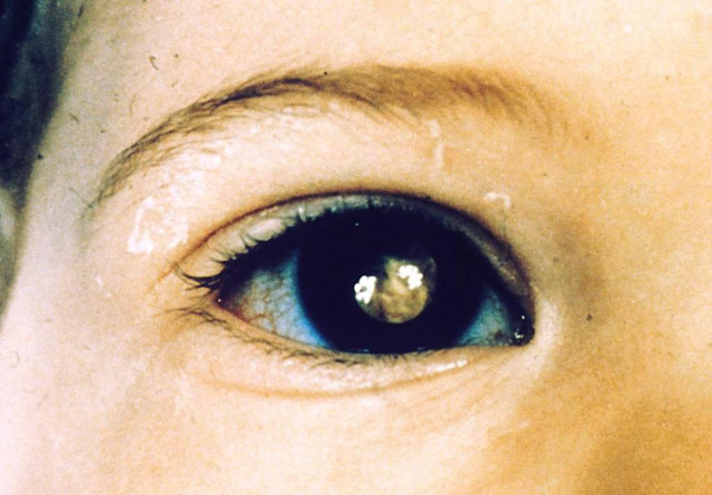 Помутнение роговицы глаза: лечение, причины возникновения, виды лейкомы и влияние на зрение